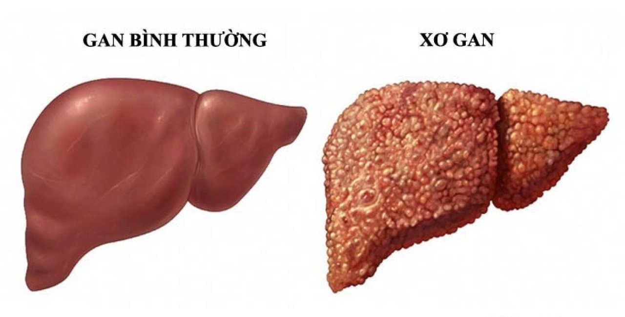 Xơ gan: Tổn thương gan nghiêm trọng có thể dẫn tới tử vong | Gia An 115